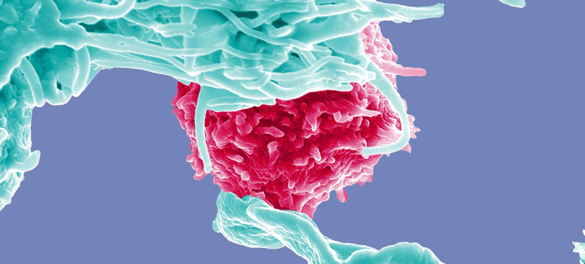 Dendritic cell up close.